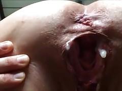 borsa cornea