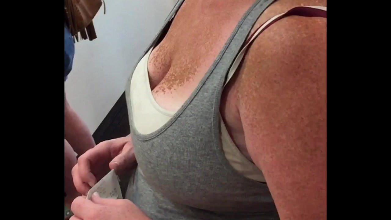 Freckled boobs big Freckles Big