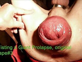 Fisting a Giant Prolapse, original tape #3